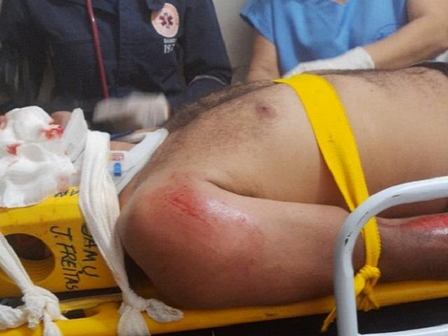 Irmão de vereador de sofre grave acidente em José de Freitas